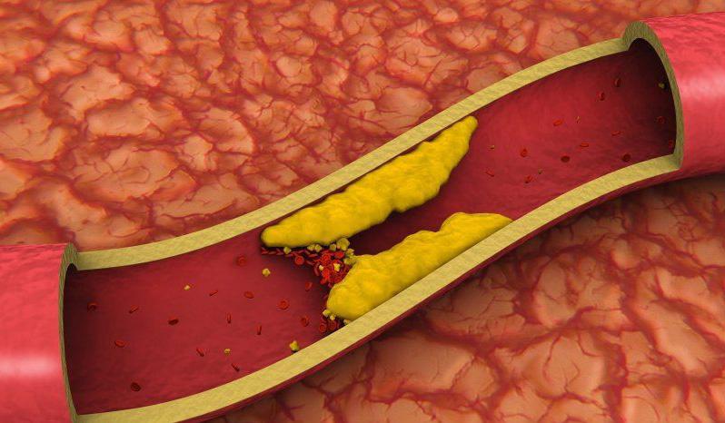 от растет холестерин крови